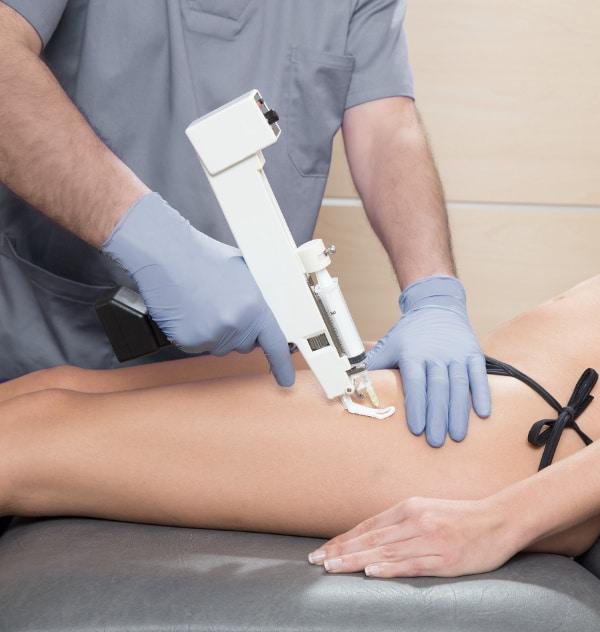 mesoterapia contra la celulitis