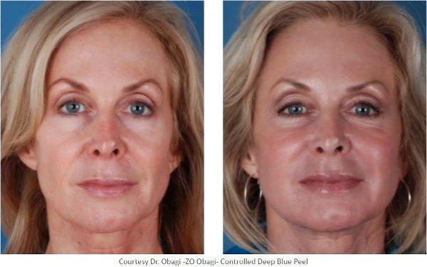 Antes y después del peeling Controlled Depth Peel (Cortesía del Dr. Obagi)