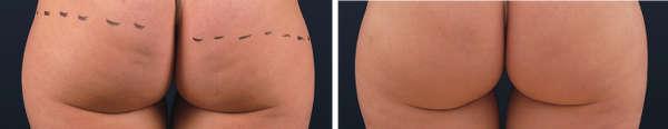Antes y después del tratamiento de la celulitis con ondas de choque