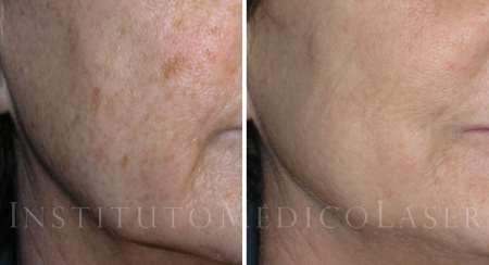 antes y despues de eliminar lentigos solares - Picosure, láser de picosegundos contra Tatuajes y Manchas en la piel -