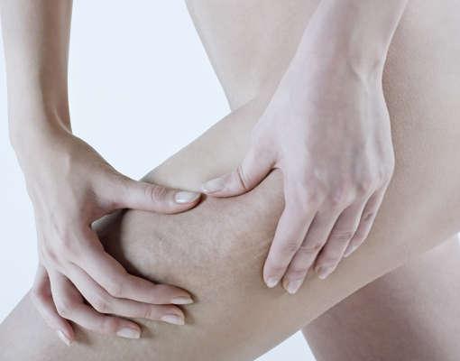 La celulitis edematosa presenta irregularidades en la piel al pellizcar la zona con los dedos