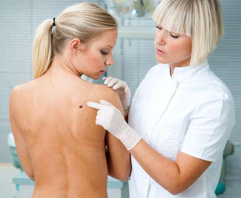 La cirugía de Mohs elimina tumores cutáneos no melanoma con alto índice de curación