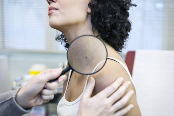Controlar las manchas en la piel y los lunares permiten el diagnóstico precoz del melanoma