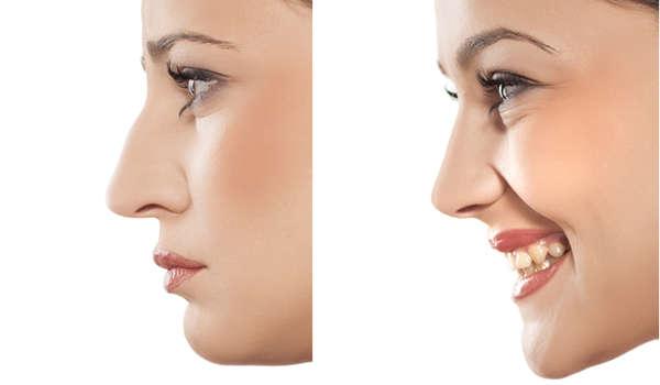 Al corregir el dorso nasal, aumenta la percepción global de belleza en el rostro