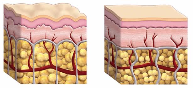 Las cuatro fases de la celulitis son: edema intersticial, exudativa, fibrosis y esclerosis
