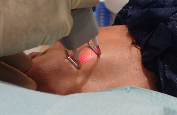 El láser en Dermatología se aplica tanto para corregir lesiones estéticas como lesiones clínicas
