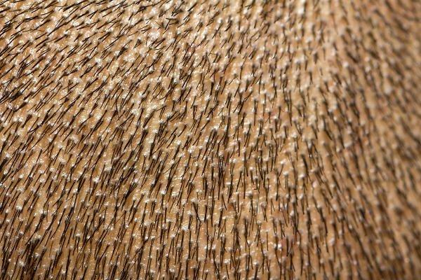 El pelo crece en direcciones diferentes en función de cada zona de la cabeza