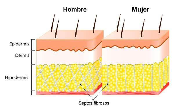 La disposición de los lóbulos de grasa es diferente en la mujer