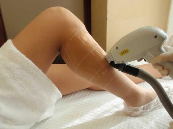 Escena de depilación médica con láser Diodo de Barrido