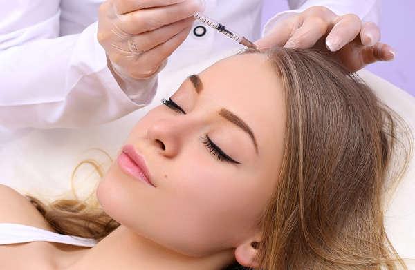 El hair filler de Biopéptidos para el rejuvenecimiento capilar debe ser aplicado por médicos con formación específica en esta técnica