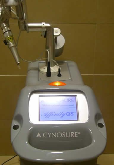 El Láser de Alejandrita Q-Switched es empleado para eliminación de manchas y tatuajes