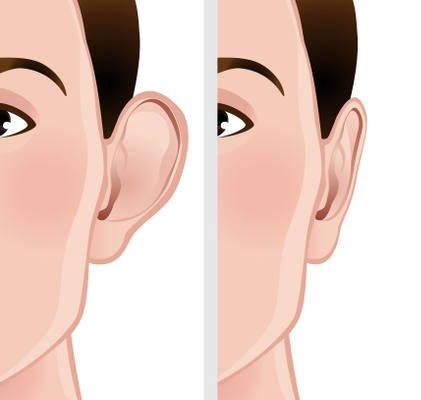 resultados operacion de orejas de soplillo