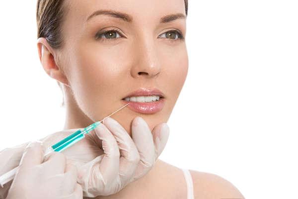 El ácido hialurónico para perfilar labios