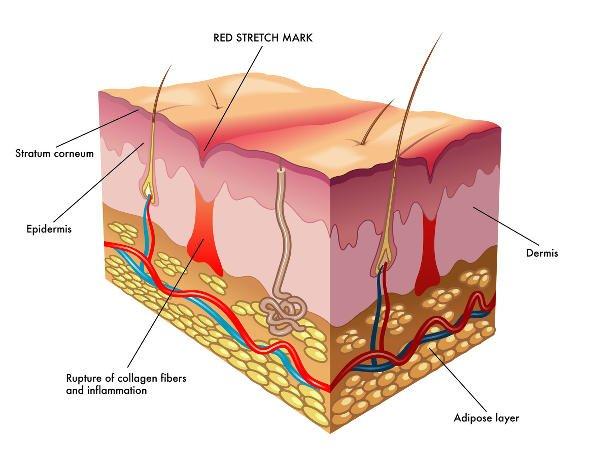 Las estrías son marcas en la piel fruto de la ruptura de las fibras de la dermis