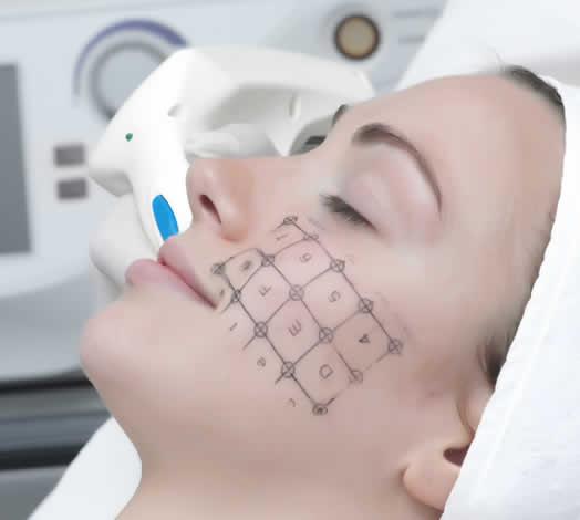 La Radiofrecuencia provoca una contracción de la piel que redefine el óvalo facial