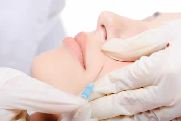 La regeneración mediante plasma rico en factores de crecimento es un fabuloso complemento a los peelings faciales
