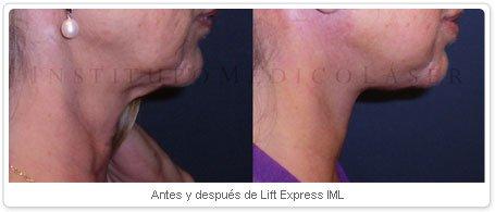 Antes y despues de Lift Express IML
