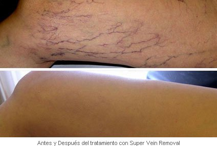 Antes Despues Super Vein Removal