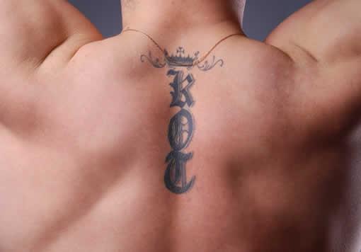 Los tatuajes profesionales son más sencillos de eliminar con láser