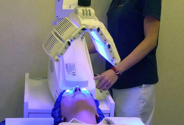 Terapia fotodinámica para el acné