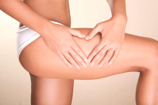 La celulitis se localiza en zonas como glúteos, muslos o cartucheras