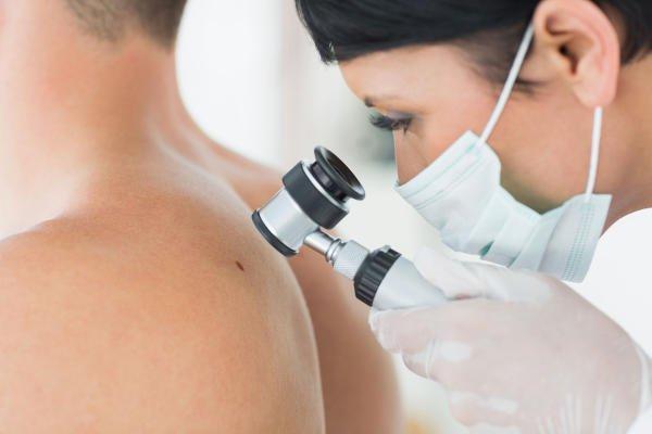 Tipos de fotodermatosis o alergia al sol