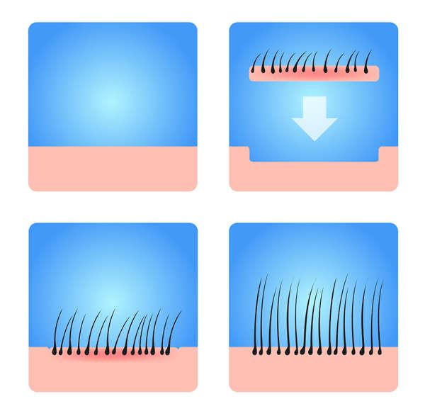 Preparación de los injertos de pelo