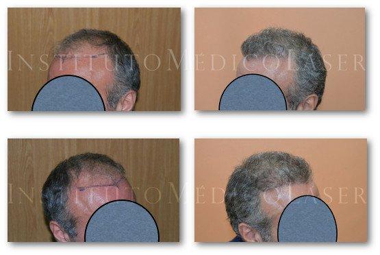 Trasplante capilar antes y después