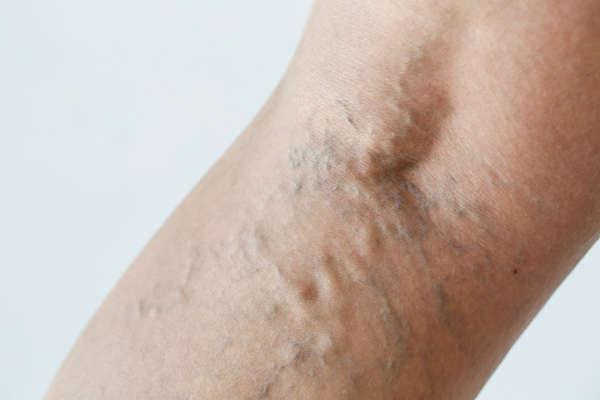Los tratamientos para varices son demandados cada vez más por motivos estéticos y funcionales
