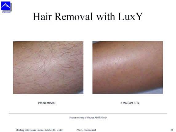 El uso de anchos de pulso equivalentes al TDT permite atacar a las células madre con mayor solvencia y además tener un tratamiento mucho más seguro para la piel