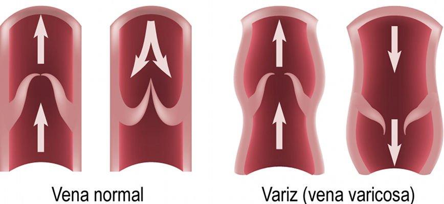 Varius; vena normal i vena varicosa