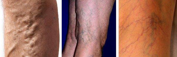 Varices tronculares, reticulares y telangiectasias o arañas vasculares
