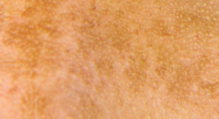 El melasma es un tipo de pigmentación facial difusa
