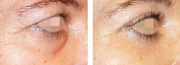 antes y después de la operación de bolsas en los ojos