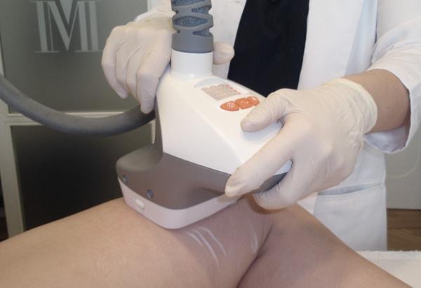 Operación bikini: Tratamiento celulitis