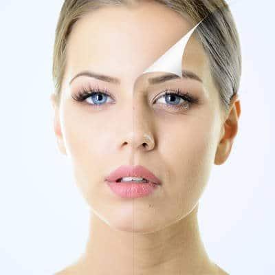 tratamiento con peeling multifuncional