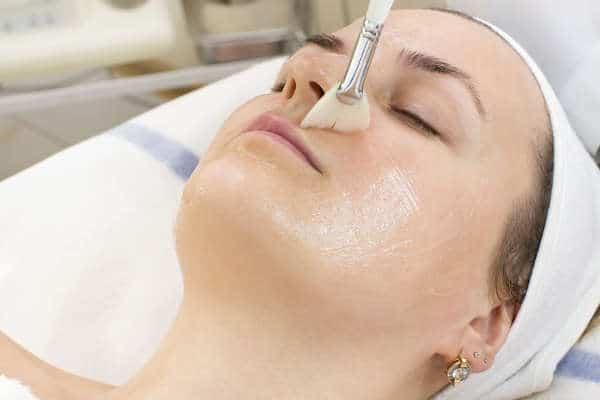tratamiento de peeling quimico