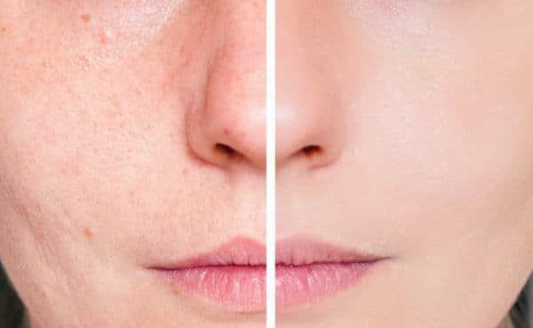 regeneracion de piel con peeling
