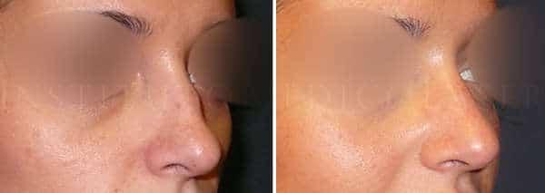 acido hialuronico nariz