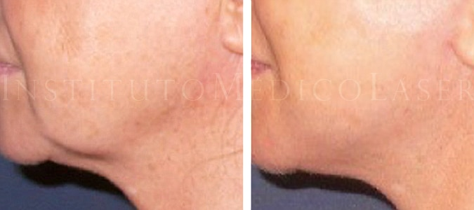 Cicatriz Hipertrofica