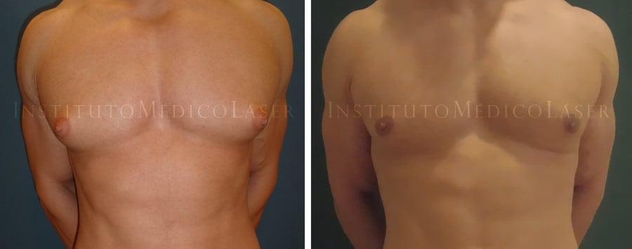 Ginecomastia en hombres, antes y después