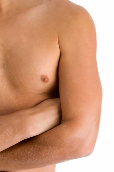 tratamiento ginecomastia