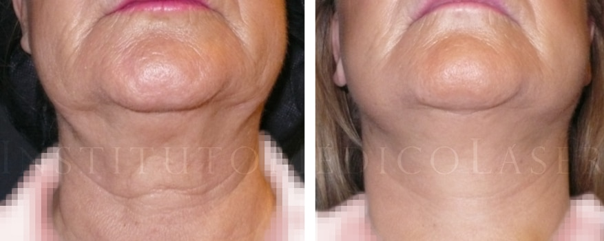 lifting-tercio-facial-cuello