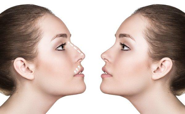 mejorar nariz sin cirugía