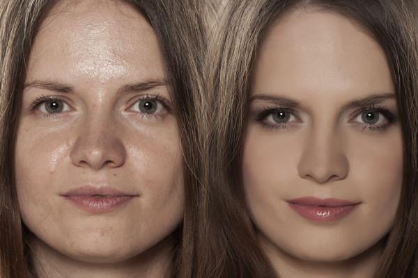 El exceso de brillo en la piel