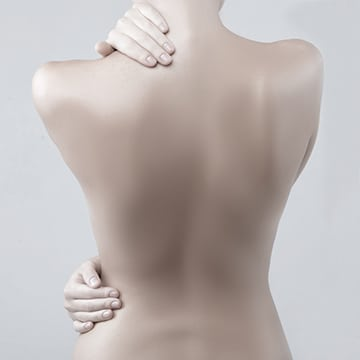 Tratamientos para Cicatrices por Quemaduras