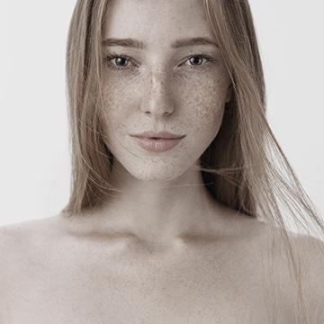 Tratamientos para Eliminar Micropigmentación