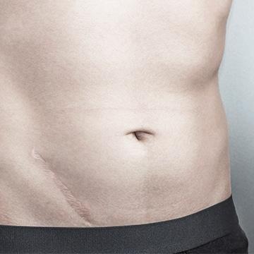 Tratamientos para Eliminar Cicatrices