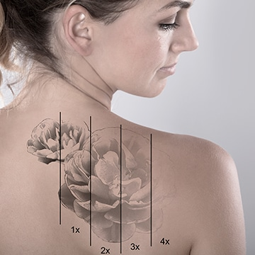 Tratamientos para Eliminar tatuajes