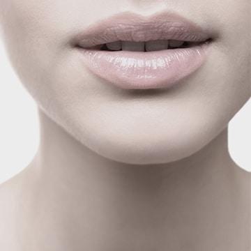 tratamiento relleno labial